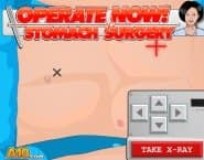 Operate Now: Stomach Surgery